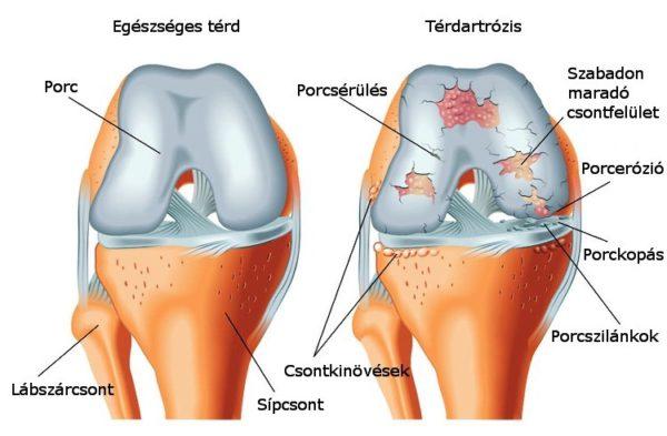 az osteoarthritis nem műtéti kezelése kundalini és ízületi fájdalmak